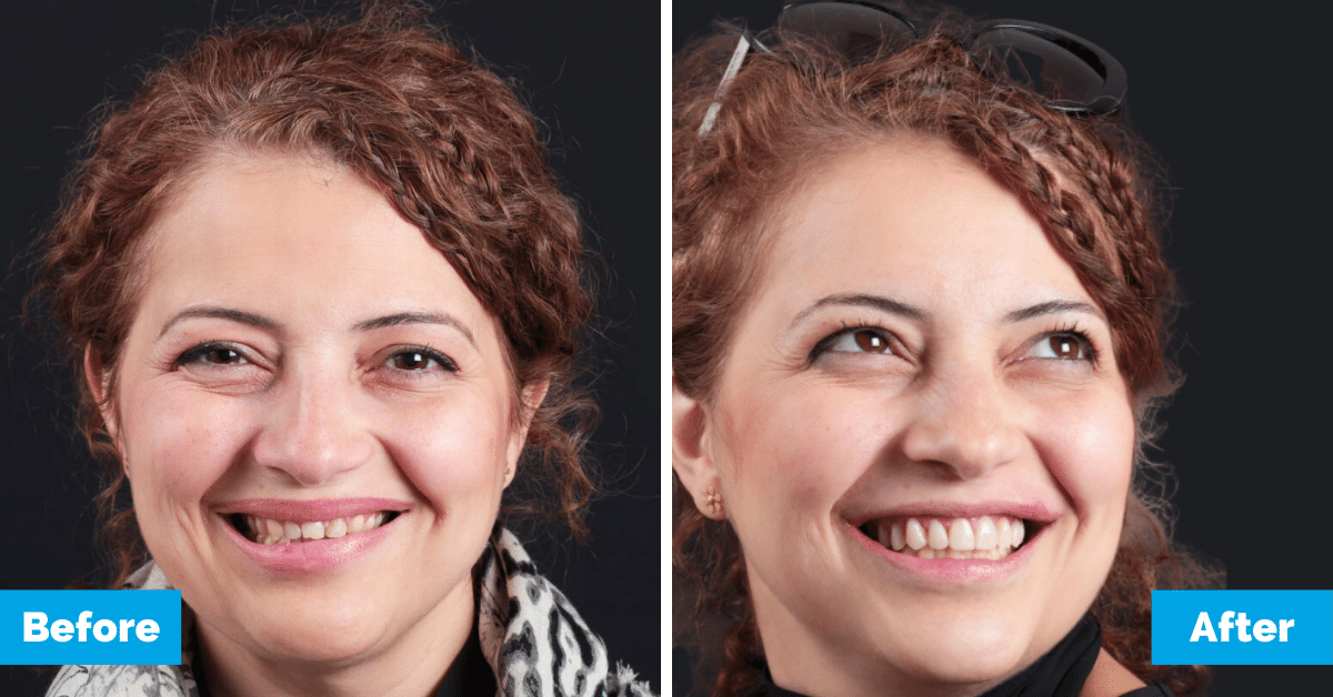Oralux-Dental-Sydney-Sahar-Head-Shot