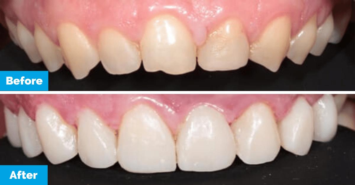 Oralux-Dental-Sydney-Sahar-Teeth