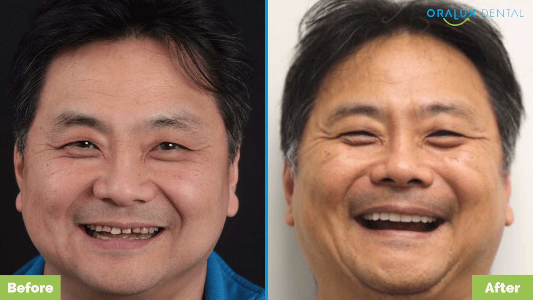Oralux-Dental_David_Smile-Makeover