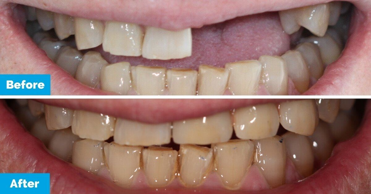 Oralux-Dental_Mr-D_Before-and-After-1