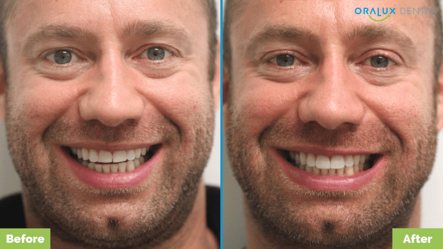 Angus_Crows-Nest_Oralux-Dental1