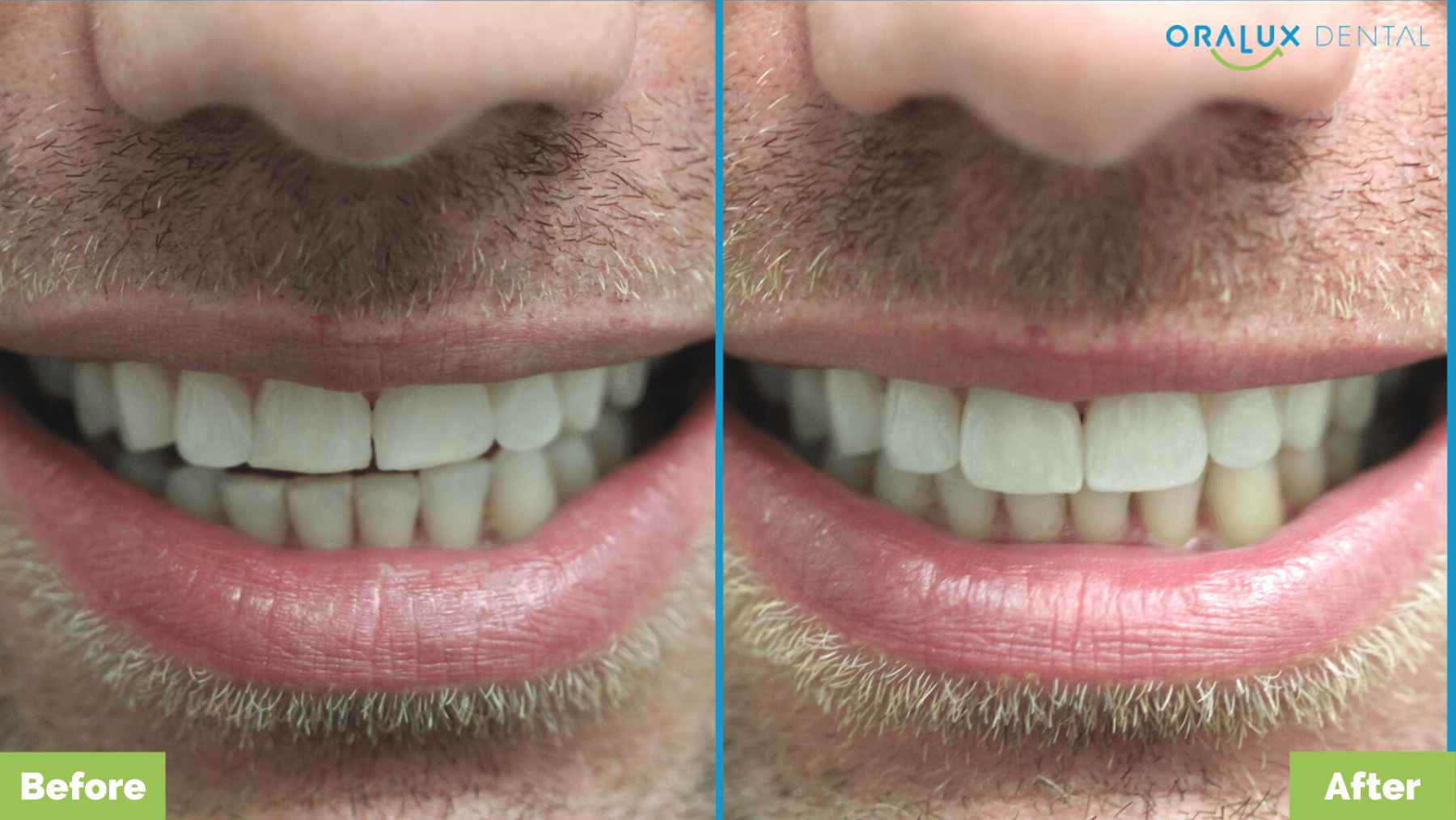 Angus_Crows-Nest_Oralux-Dental2