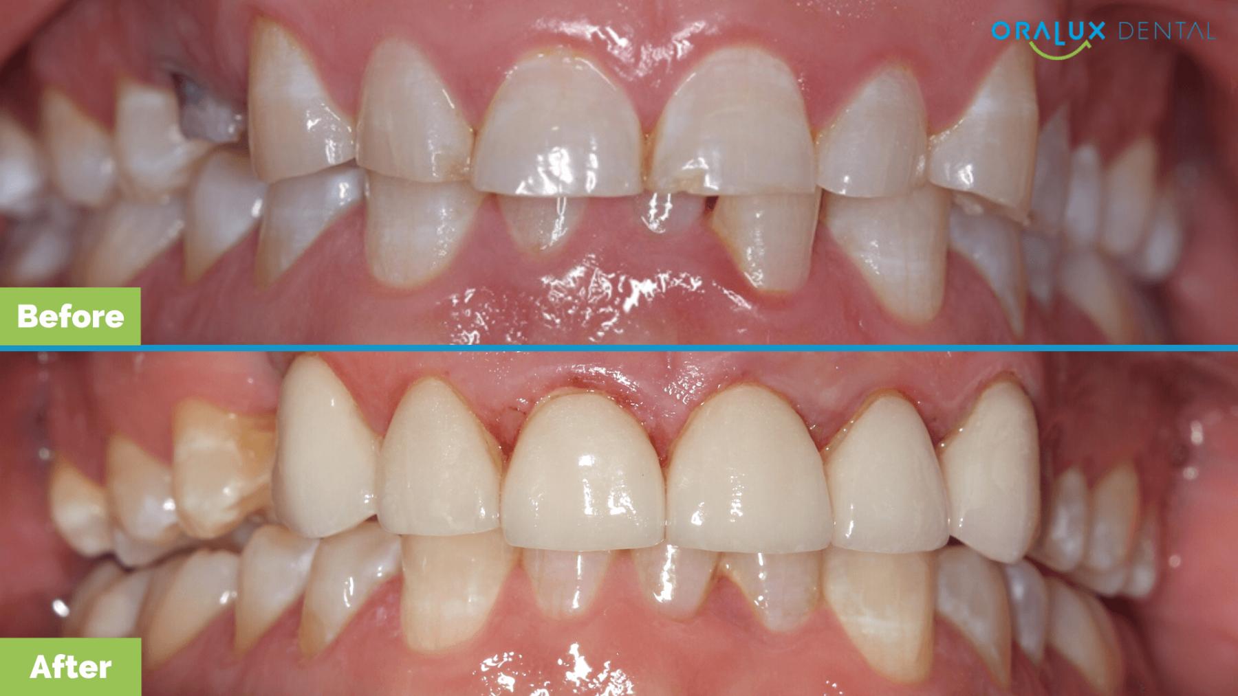Oralux-Dental-Chriss-Smile-Makeover-1