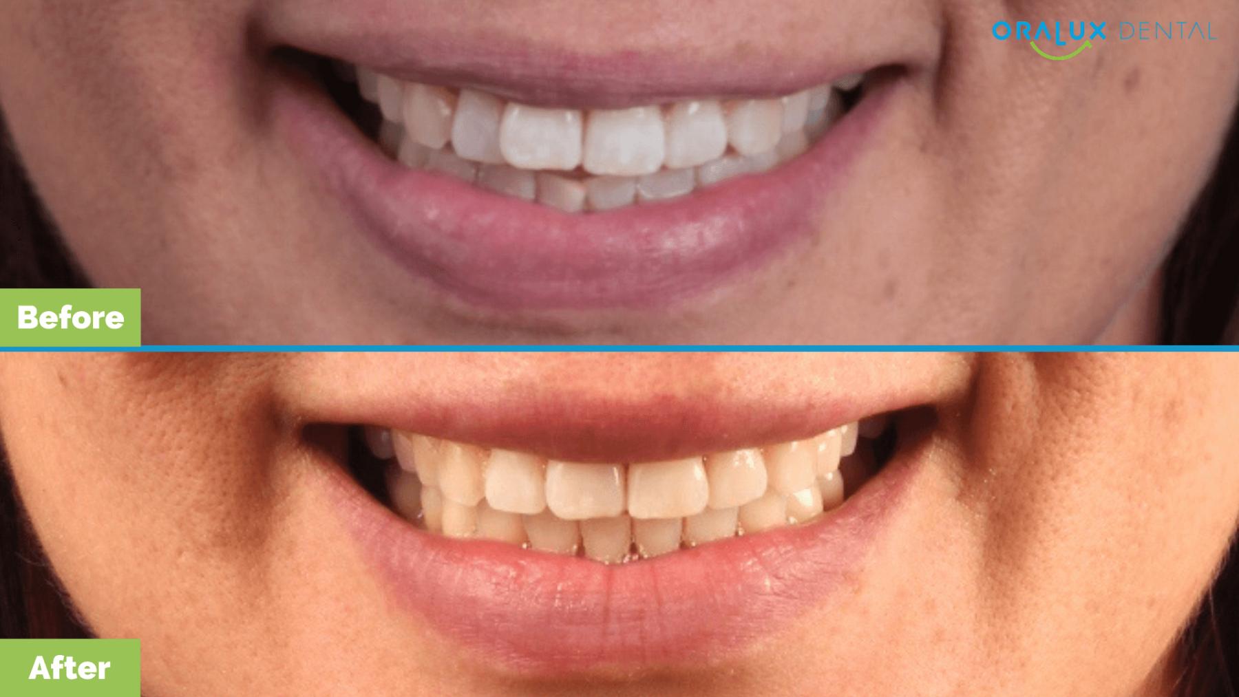Oralux-Dental_Leah-Smile-Makeover2