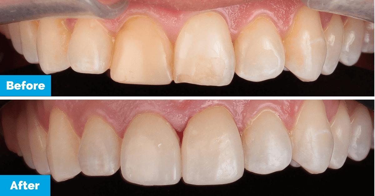 Lindsay-BA-Upper-teeth-OK