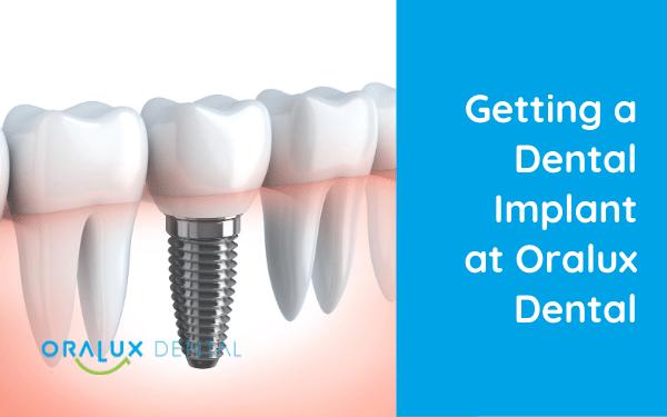 Getting a Dental Implant at Oralux Dental