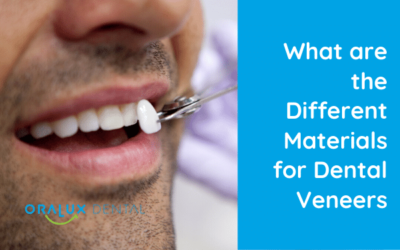 What are the Different Materials for Dental Veneers