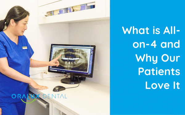 What is All-Teeth-On-4 and Why Our Patients Love It
