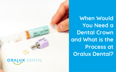When Would You Need a Dental Crown?