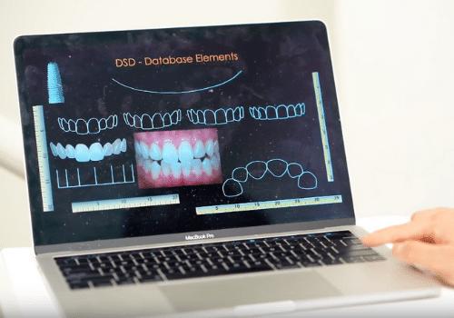 Digital Smile Design In Sydney Make Your Smile Perfect Oralux Dental