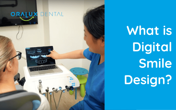 What is Digital Smile Design?