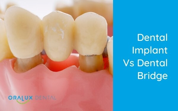 Dental Implant vs Dental Bridge