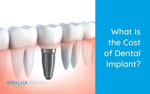 What Is The Cost Of Dental Implant?